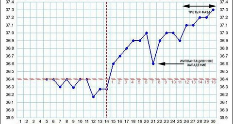 График базальной температуры с наступившей беременностью