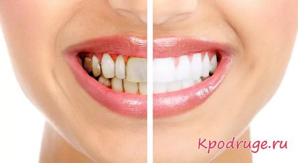 Как избавиться от налета на зубной эмали
