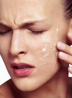 Забота о сухой коже лица: не засохни как сухофрукт!
